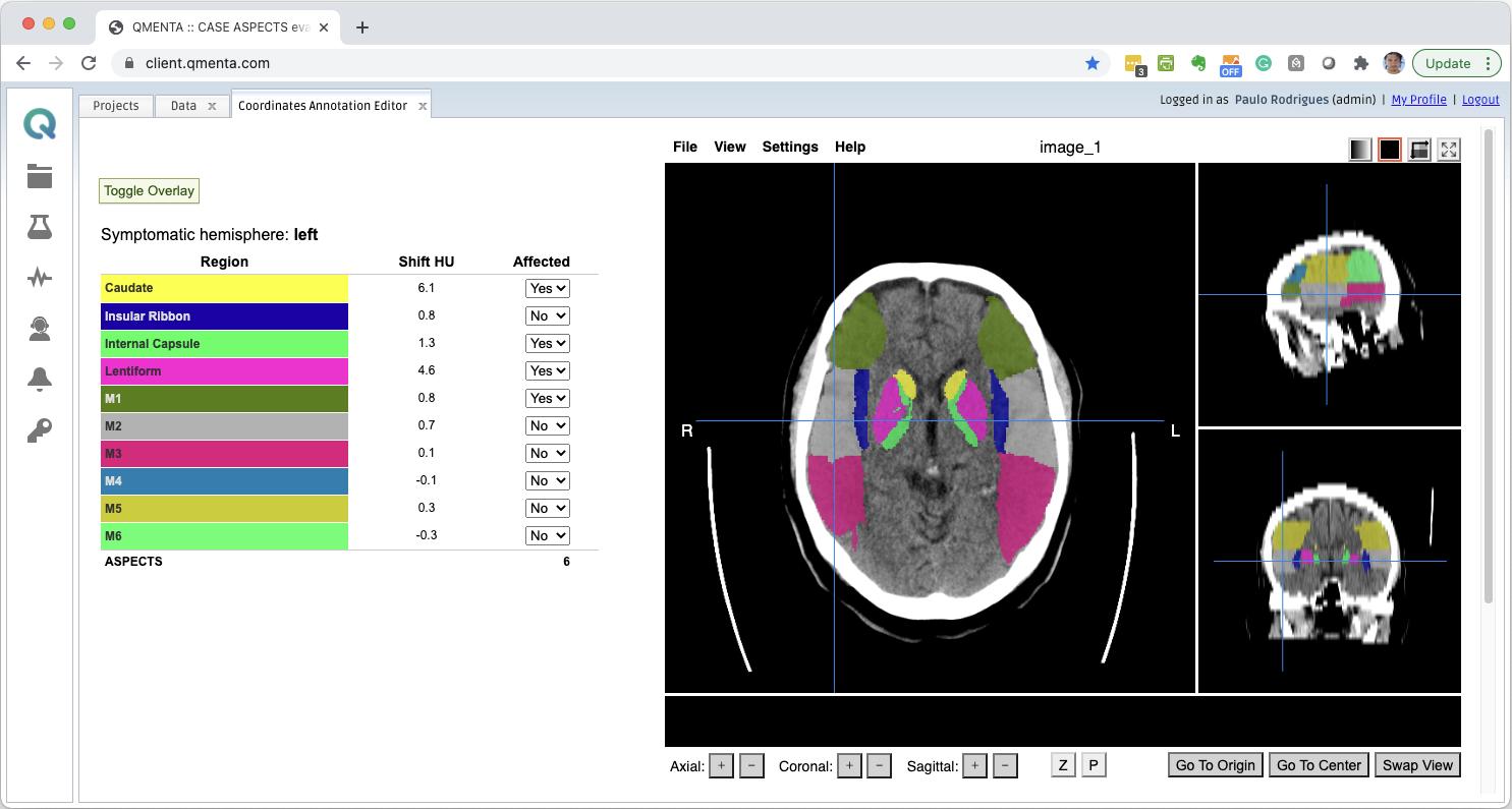 Screenshot of QMENTA platform showing a brain segmentation.