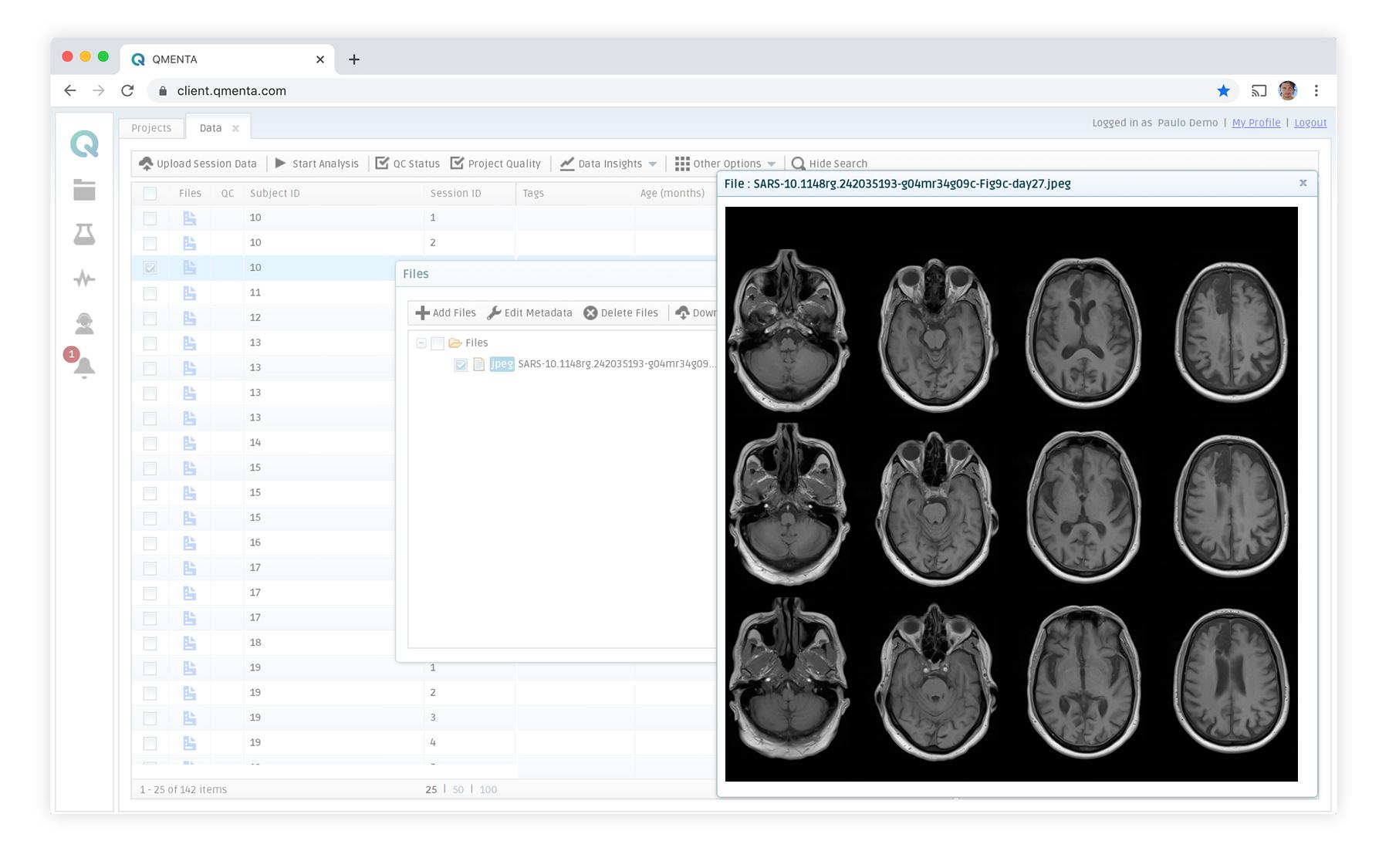 qmenta-platform-discover-stroke